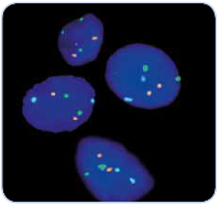 Advancements in Cytogenetics: Diagnosis of Sarcomas and Lung cancer by FISH